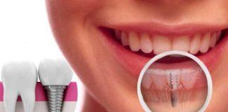 Dental Implants – Is It a Safe Option to Choose