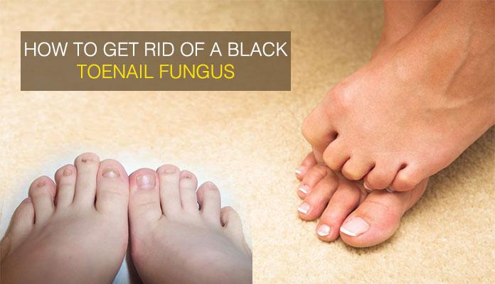 How to Get Rid of Black Toenail Fungus