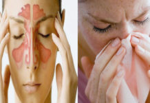 Sinus Infection Home Remedies